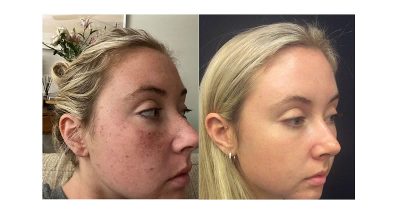 Photorejuvenation (IPL/BBL)